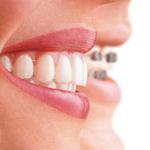 brackets-invisalign-full-v275x360